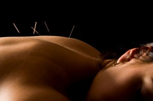 Acupuncture at Kingston Natural Health Centre