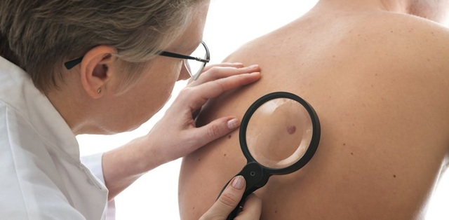 Skin Cancer Prevention