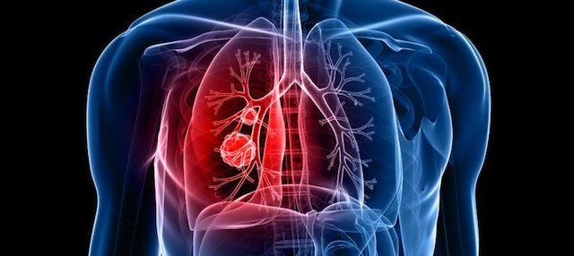 Preventing Lung Disease
