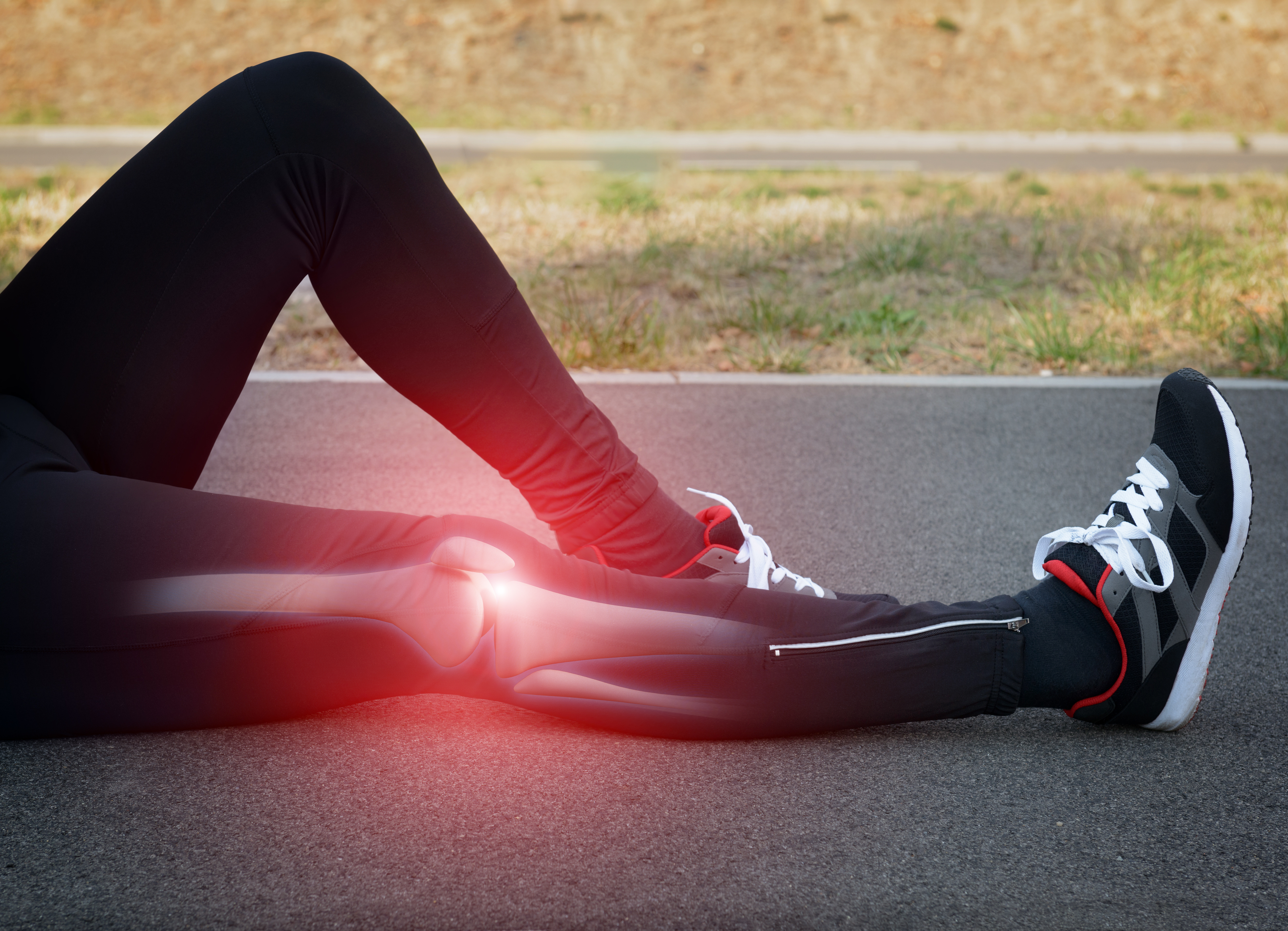 Runner Knee Injury And Pain With Leg Bones Visible